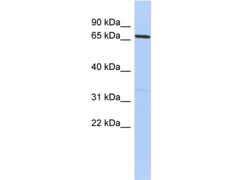 Western Blotting (WB) image for anti-PR Domain Containing 1, with ZNF Domain (PRDM1) (Middle Region) antibody (ABIN2792524)