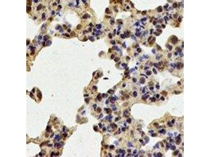 Immunohistochemistry (IHC) image for anti-Tripeptidyl Peptidase II (Tpp2) antibody (ABIN2967104)