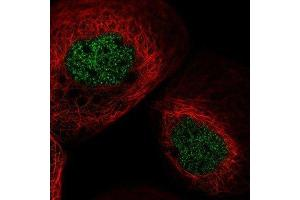 Immunofluorescence (IF) image for anti-RYK antibody (RYK Receptor-Like Tyrosine Kinase) (ABIN4351516)