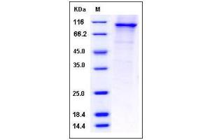 Image no. 1 for phosphodiesterase 4B, cAMP-Specific (PDE4B) (AA 1-564) protein (GST tag,His tag) (ABIN2004327)