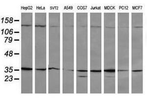 image for anti-Mitogen-Activated Protein Kinase Kinase 3 (MAP2K3) antibody (ABIN1499400)