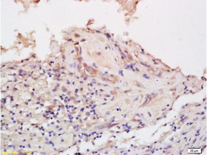 Immunohistochemistry (IHC) image for anti-EPH Receptor B6 (EPHB6) antibody (ABIN742230)