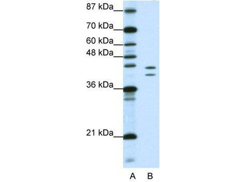 Image no. 3 for anti-Heterogeneous Nuclear Ribonucleoprotein D (AU-Rich Element RNA Binding Protein 1, 37kDa) (HNRNPD) (N-Term) antibody (ABIN2778694)