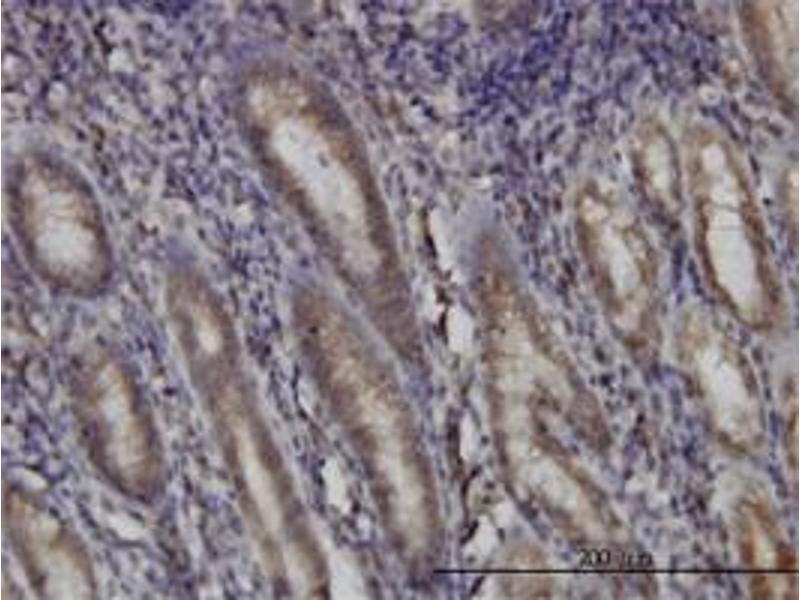 Immunohistochemistry (IHC) image for anti-DHOdehase (AA 32-141) antibody (ABIN394474)