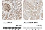 Immunohistochemistry (Paraffin-embedded Sections) (IHC (p)) image for anti-Fibroblast Growth Factor 1 (Acidic) (FGF1) antibody (ABIN4311439)