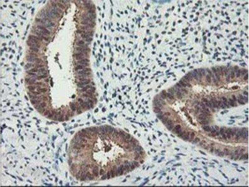 Immunohistochemistry (Paraffin-embedded Sections) (IHC (p)) image for anti-Retinoblastoma Binding Protein 7 (RBBP7) antibody (ABIN4349488)