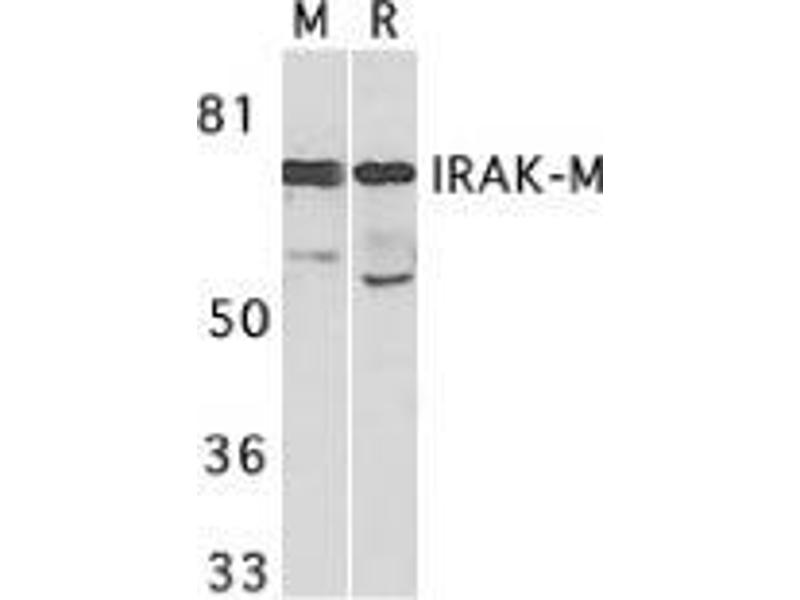 Western Blotting (WB) image for anti-IRAK3 antibody (Interleukin-1 Receptor-Associated Kinase 3) (ABIN500046)