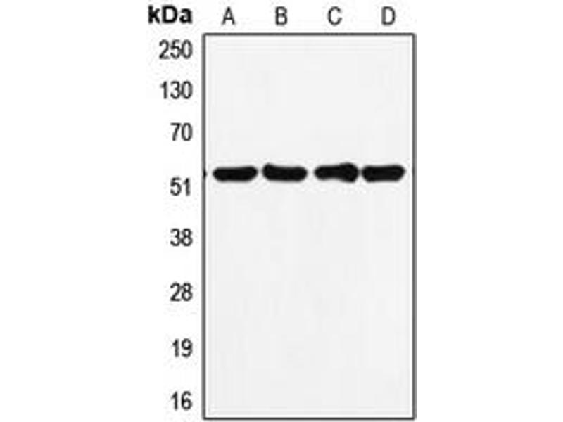 Western Blotting (WB) image for anti-Tumor Protein P53 (TP53) (C-Term) antibody (ABIN2705092)