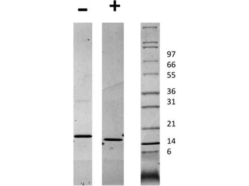 Image no. 2 for CD40 Ligand (CD40LG) protein (ABIN6699579)