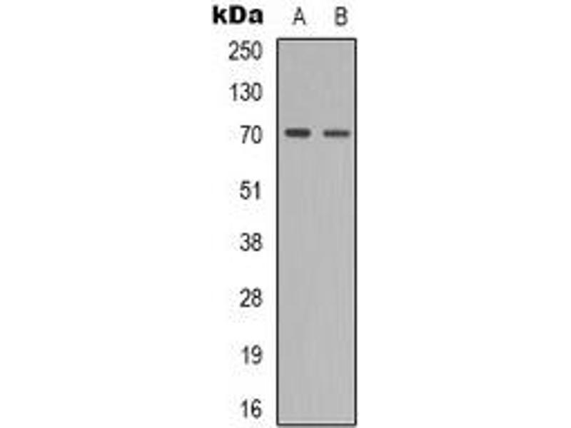 Western Blotting (WB) image for anti-zeta-Chain (TCR) Associated Protein Kinase 70kDa (ZAP70) (pTyr319) antibody (ABIN2957797)