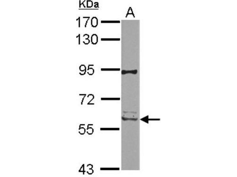 Western Blotting (WB) image for anti-RIPK2 antibody (Receptor-Interacting Serine-threonine Kinase 2) (Center) (ABIN4350596)