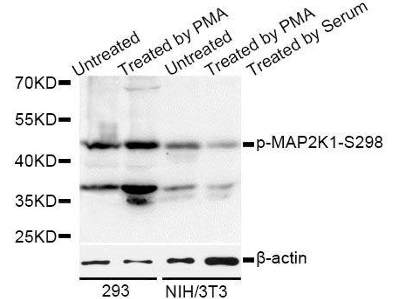 Western Blotting (WB) image for anti-Mitogen-Activated Protein Kinase Kinase 1 (MAP2K1) (pSer297) antibody (ABIN2987268)