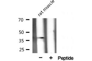 Image no. 2 for anti-X-Ray Repair Complementing Defective Repair in Chinese Hamster Cells 3 (XRCC3) antibody (ABIN6266068)