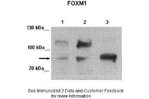 Image no. 5 for anti-Forkhead Box M1 (FOXM1) (Middle Region) antibody (ABIN2792172)