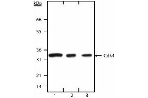 Western Blotting (WB) image for anti-CDK4 antibody (Cyclin-Dependent Kinase 4) (N-Term) (ABIN967650)