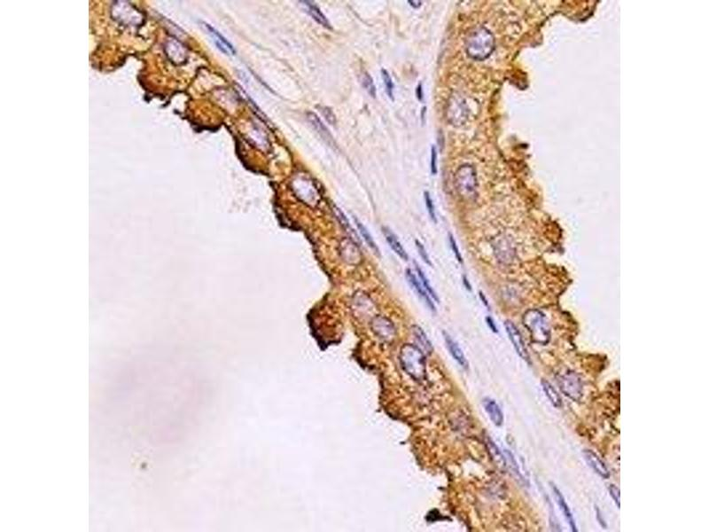 Immunohistochemistry (IHC) image for anti-DEAD (Asp-Glu-Ala-Asp) Box Polypeptide 58 (DDX58) antibody (ABIN3198029)