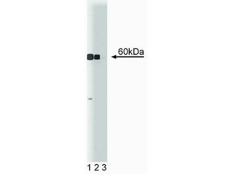 Western Blotting (WB) image for anti-Calcium/calmodulin-Dependent Protein Kinase IV (CAMK4) (AA 1-241) antibody (ABIN967876)