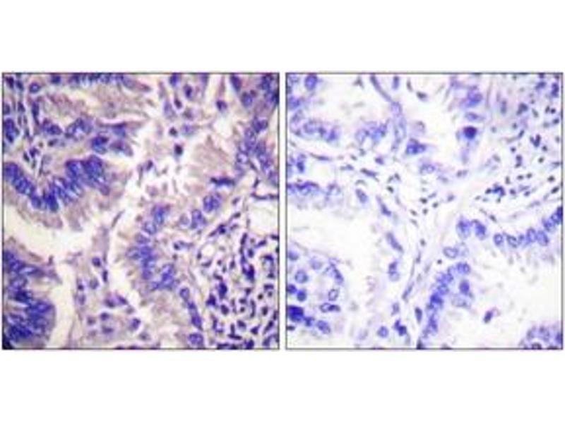 Immunohistochemistry (IHC) image for anti-Caspase 9 antibody (Caspase 9, Apoptosis-Related Cysteine Peptidase) (Cleaved-Asp315) (ABIN1536087)