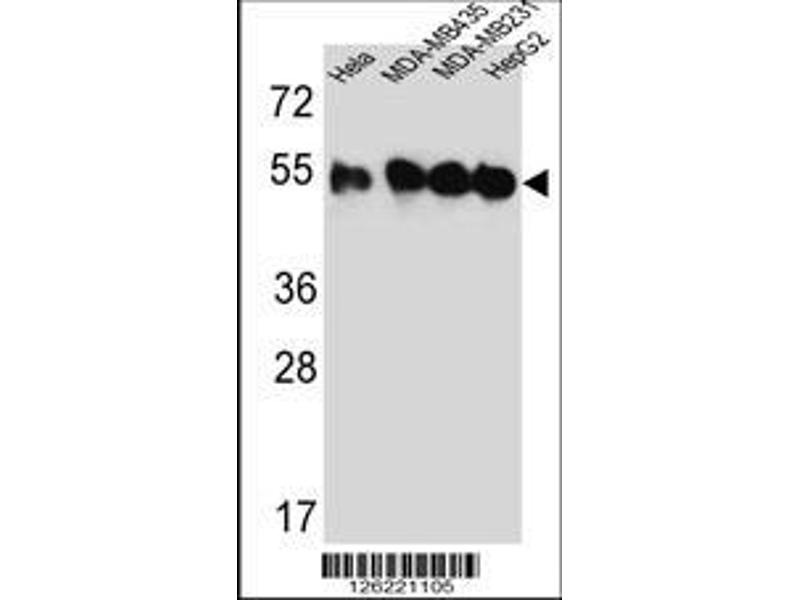 Western Blotting (WB) image for anti-Tubulin, Beta, 2C (TUBB2C) (AA 99-125), (Center) antibody (ABIN651319)