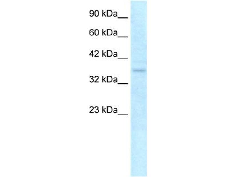 Western Blotting (WB) image for anti-NLR Family, CARD Domain Containing 4 (NLRC4) (C-Term) antibody (ABIN2792097)