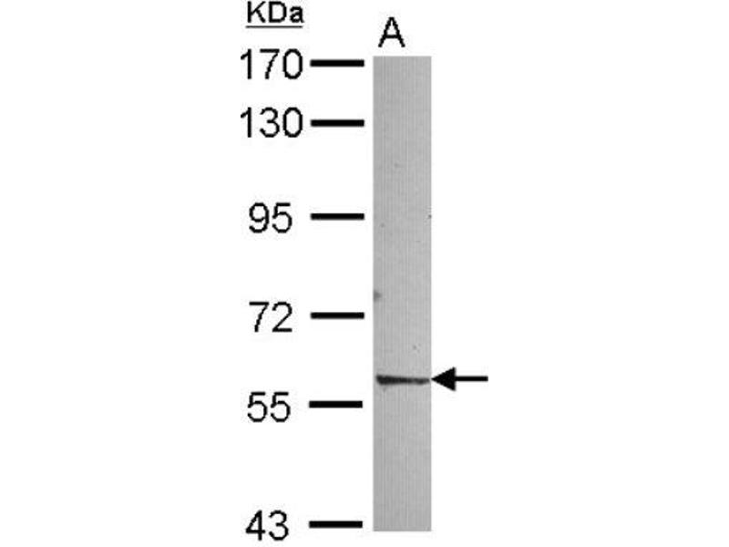 Western Blotting (WB) image for anti-Nuclear Receptor Subfamily 1, Group D, Member 2 (NR1D2) (Center) antibody (ABIN4350179)