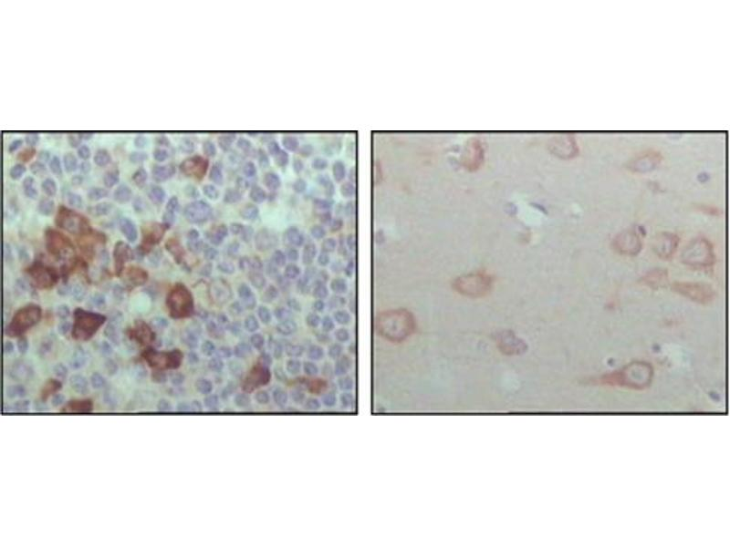 Immunohistochemistry (IHC) image for anti-EPH Receptor B6 antibody (EPHB6) (ABIN1107117)