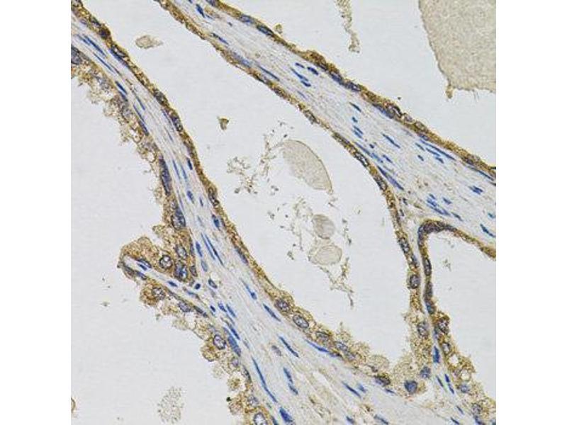 Immunohistochemistry (IHC) image for anti-PTK7 Protein tyrosine Kinase 7 (PTK7) antibody (ABIN4904903)
