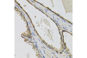Immunohistochemistry (IHC) image for anti-PTK7 Protein tyrosine Kinase 7 (PTK7) antibody (ABIN4904903)