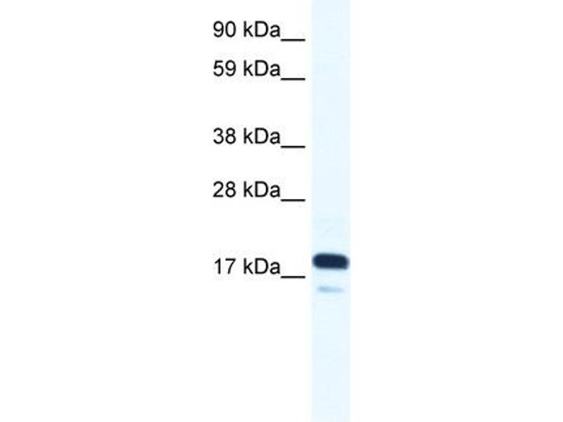 Western Blotting (WB) image for anti-RNA Polymerase II TBP-Associated Factor Subunit G (TAF9) (N-Term) antibody (ABIN2775865)
