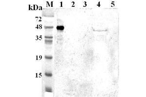 Image no. 1 for anti-Tryptophan 2,3-Dioxygenase (TDO2) antibody (ABIN1169342)