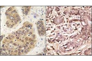 Image no. 2 for anti-SMT3 Suppressor of Mif Two 3 Homolog 4 (S. Cerevisiae) (SUMO4) (Wild Type) antibody (ABIN356786)