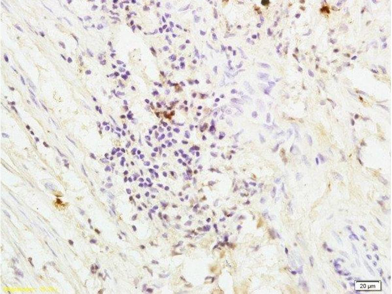 Immunohistochemistry (Paraffin-embedded Sections) (IHC (p)) image for anti-Coagulation Factor II (thrombin) Receptor (F2R) (AA 290-315) antibody (ABIN728743)