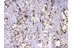 Image no. 4 for anti-Mediator Complex Subunit 9 (MED9) antibody (ABIN5647949)