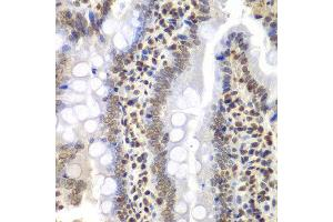 Image no. 3 for anti-Proteasome (Prosome, Macropain) 26S Subunit, ATPase, 3 (PSMC3) antibody (ABIN3022705)
