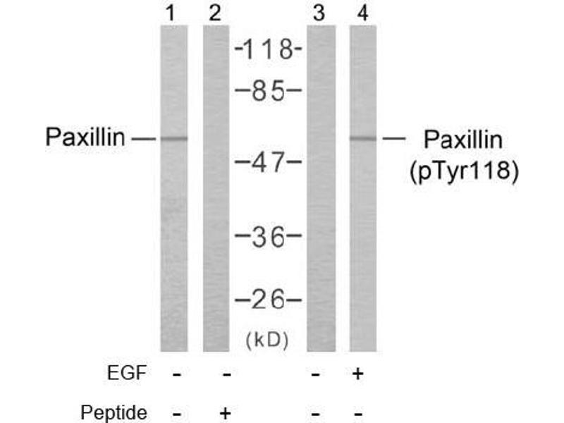 image for anti-Paxillin antibody (PXN) (pTyr118) (ABIN196776)