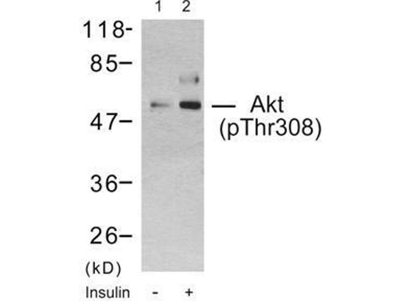 Western Blotting (WB) image for anti-V-Akt Murine Thymoma Viral Oncogene Homolog 1 (AKT1) (pThr308) antibody (ABIN6579882)