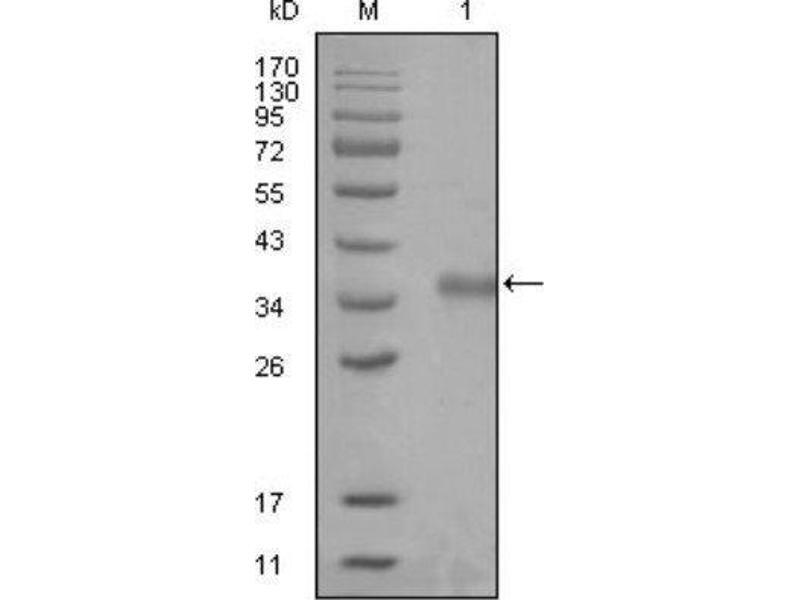 Western Blotting (WB) image for anti-Nuclear Receptor Co-Repressor 1 (NCOR1) antibody (ABIN449935)