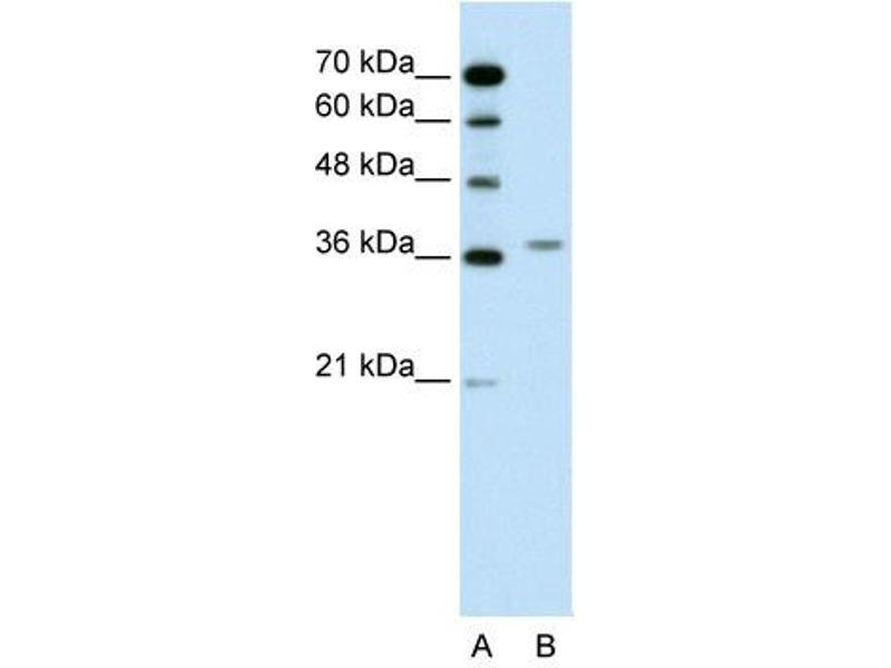 Western Blotting (WB) image for anti-Aminolevulinate Dehydratase (ALAD) (N-Term) antibody (ABIN310191)