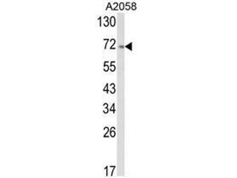 Western Blotting (WB) image for anti-ATF6 antibody (Activating Transcription Factor 6) (AA 356-386) (ABIN453523)
