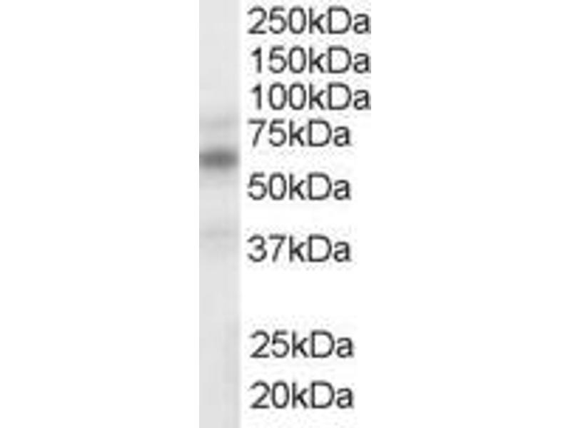 Image no. 2 for anti-Nuclear Receptor Subfamily 1, Group H, Member 2/3 (NR1H2/3) (Internal Region) antibody (ABIN185294)