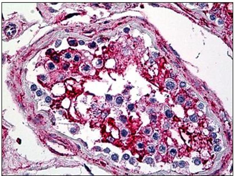 Immunohistochemistry (IHC) image for anti-Annexin V antibody (Annexin A5) (AA 1-321) (ABIN781953)