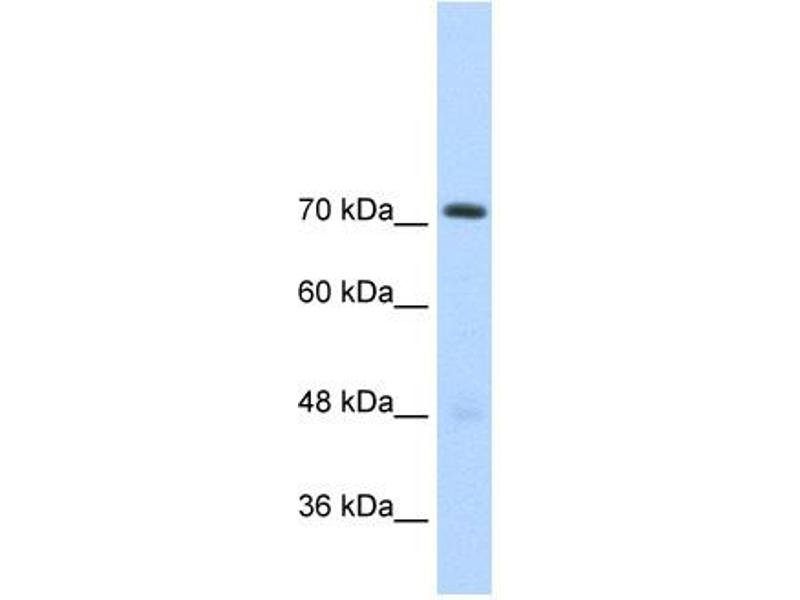 Western Blotting (WB) image for anti-GTF2I Repeat Domain Containing 1 (GTF2IRD1) (C-Term) antibody (ABIN309711)