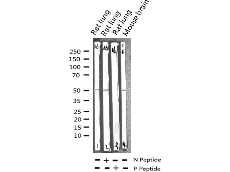 Western Blotting (WB) image for anti-Calcium/calmodulin-Dependent Protein Kinase (CaM Kinase) II beta (CAMK2B) (pThr286) antibody (ABIN6256533)