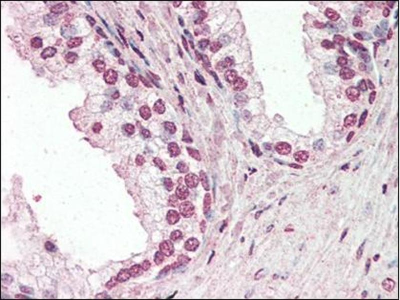 Immunohistochemistry (Paraffin-embedded Sections) (IHC (p)) image for anti-Protein Inhibitor of Activated STAT, 2 (PIAS2) (Internal Region) antibody (ABIN614937)