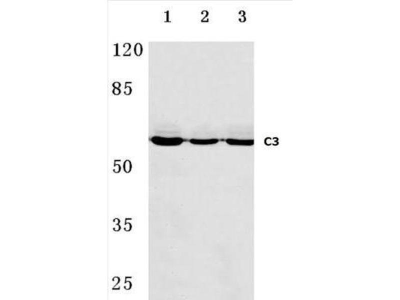 Western Blotting (WB) image for anti-C9 antibody (Complement Component C9) (ABIN4299955)