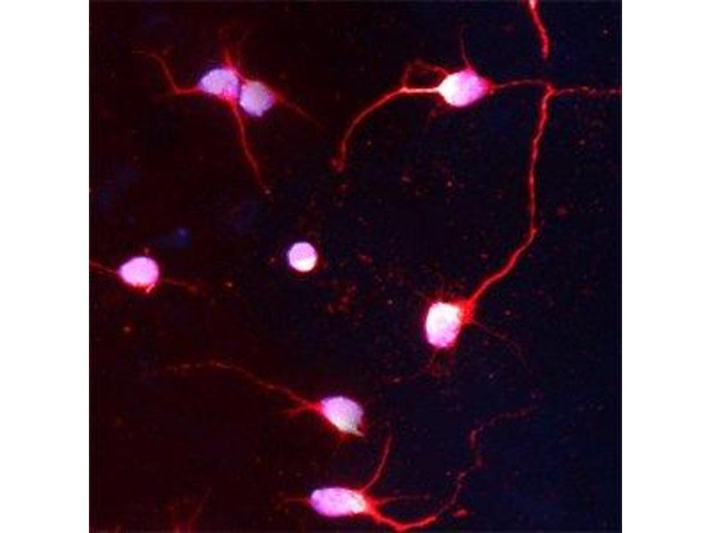 Immunofluorescence (IF) image for anti-Huntingtin (HTT) (AA 1150-1200) antibody (ABIN350376)