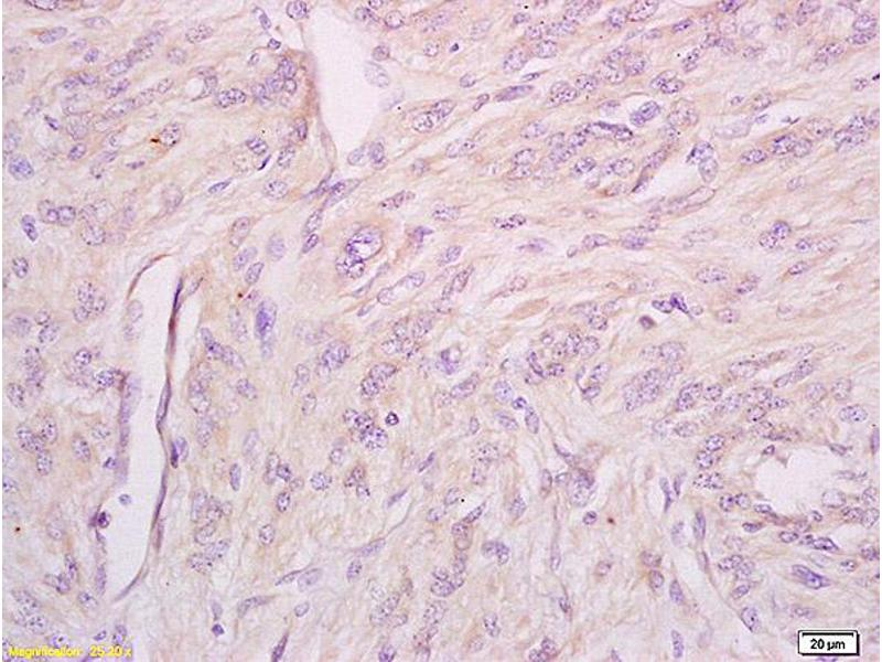 Immunohistochemistry (IHC) image for anti-IFNAR1 antibody (Interferon (Alpha, beta and Omega) Receptor 1) (AA 510-550) (ABIN802353)