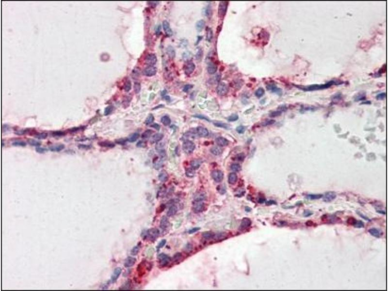 Immunohistochemistry (Paraffin-embedded Sections) (IHC (p)) image for anti-Wingless-Type MMTV Integration Site Family, Member 3 (WNT3) (Internal Region) antibody (ABIN614938)