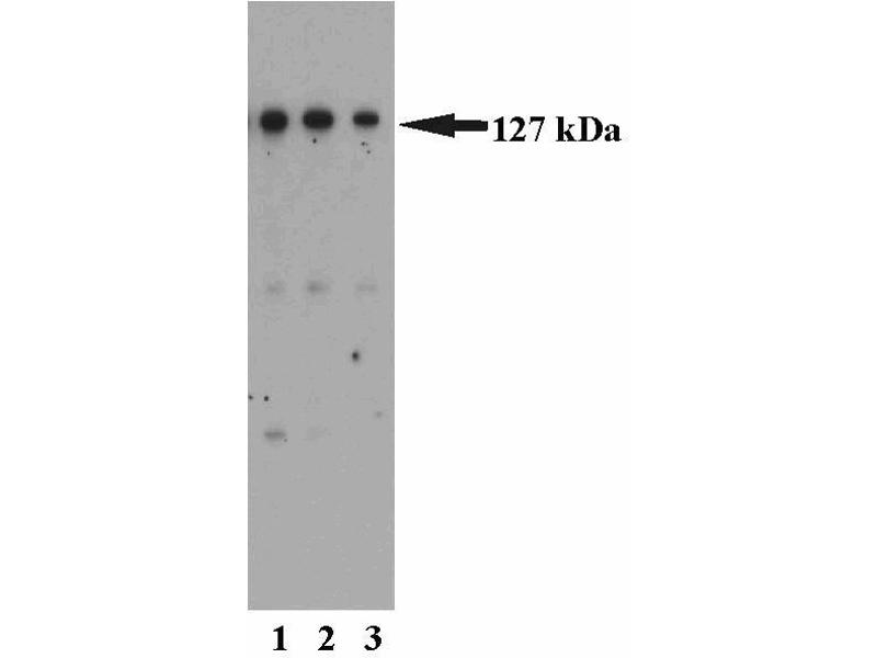 Western Blotting (WB) image for anti-MutS Homolog 3 (E. Coli) (MSH3) (AA 136-349) antibody (ABIN968513)