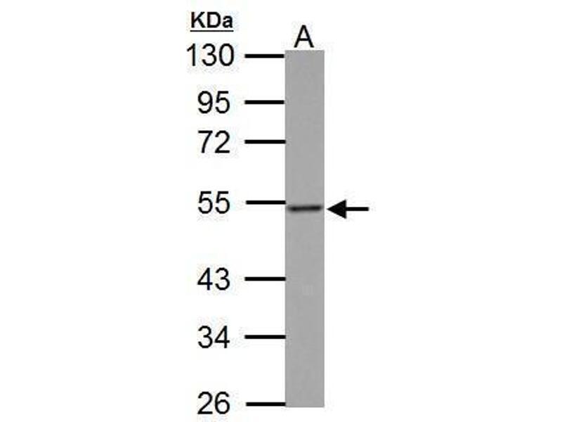 Western Blotting (WB) image for anti-Thymidine Phosphorylase (TYMP) (Center) antibody (ABIN2854887)